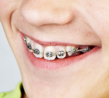 orthodontic parts