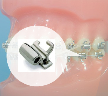 Orthodontic Parts And Pieces Greenway Orthodontics